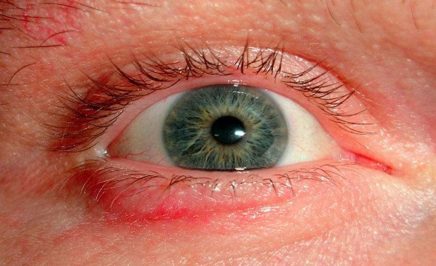 odszkodowania zaurazy oczu uk