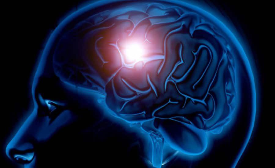 odszkodowanie za porazenie mozgowe uk