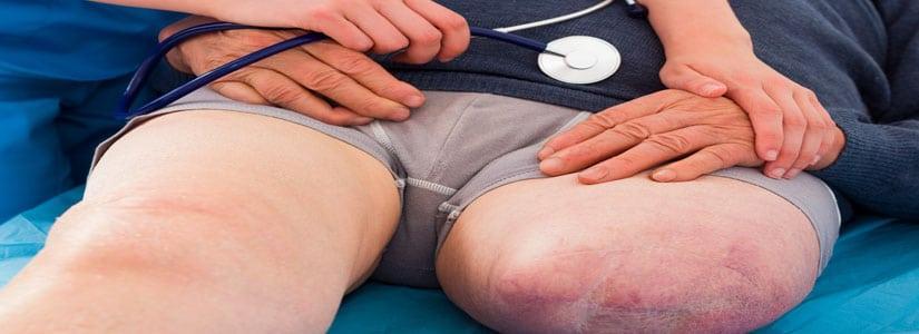 amputacja po wypadku odszkodowanie uk